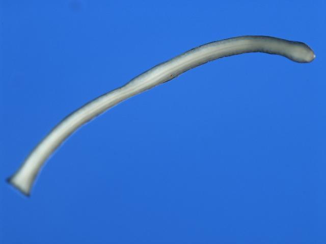 Image of Onchocercidae