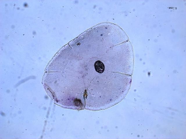 Image of Paralecanium