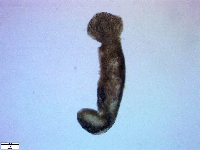Image of Echinostomatidae