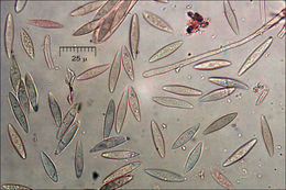 Image of <i>Lachnellula splendens</i> (J. Schröt.) Baral & Matheis 2000