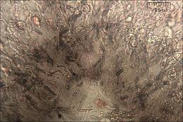 Image of <i>Exidia pithya</i>