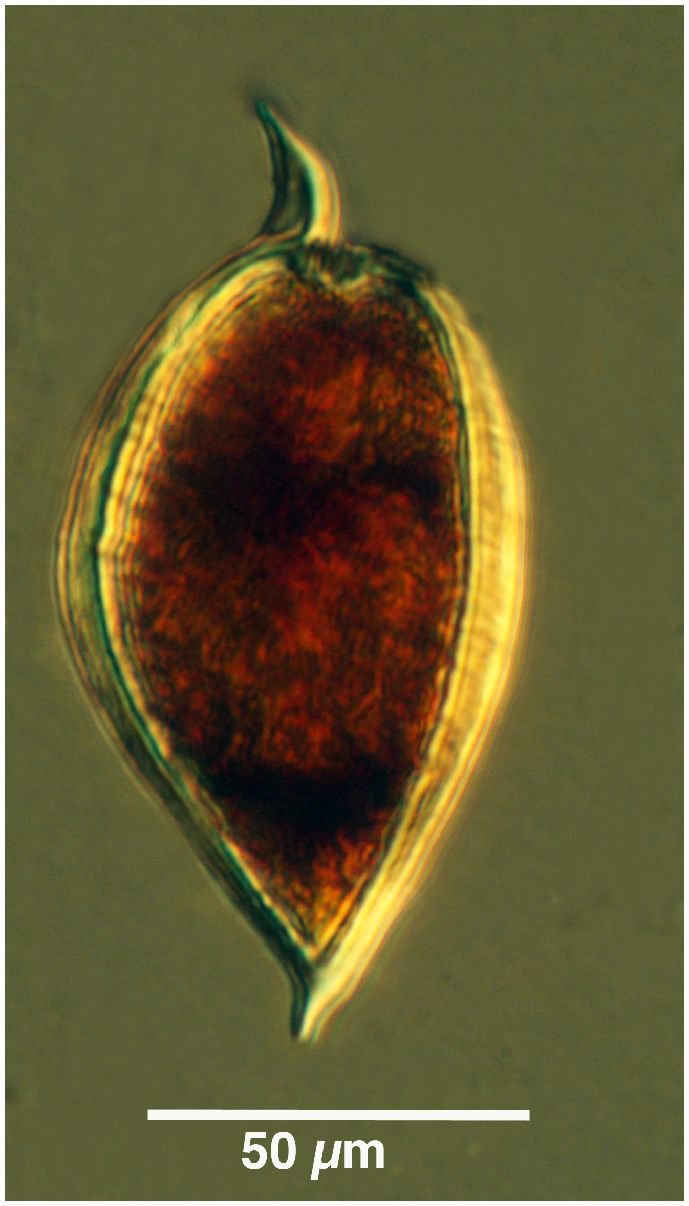Image of <i>Prorocentrum micans</i>