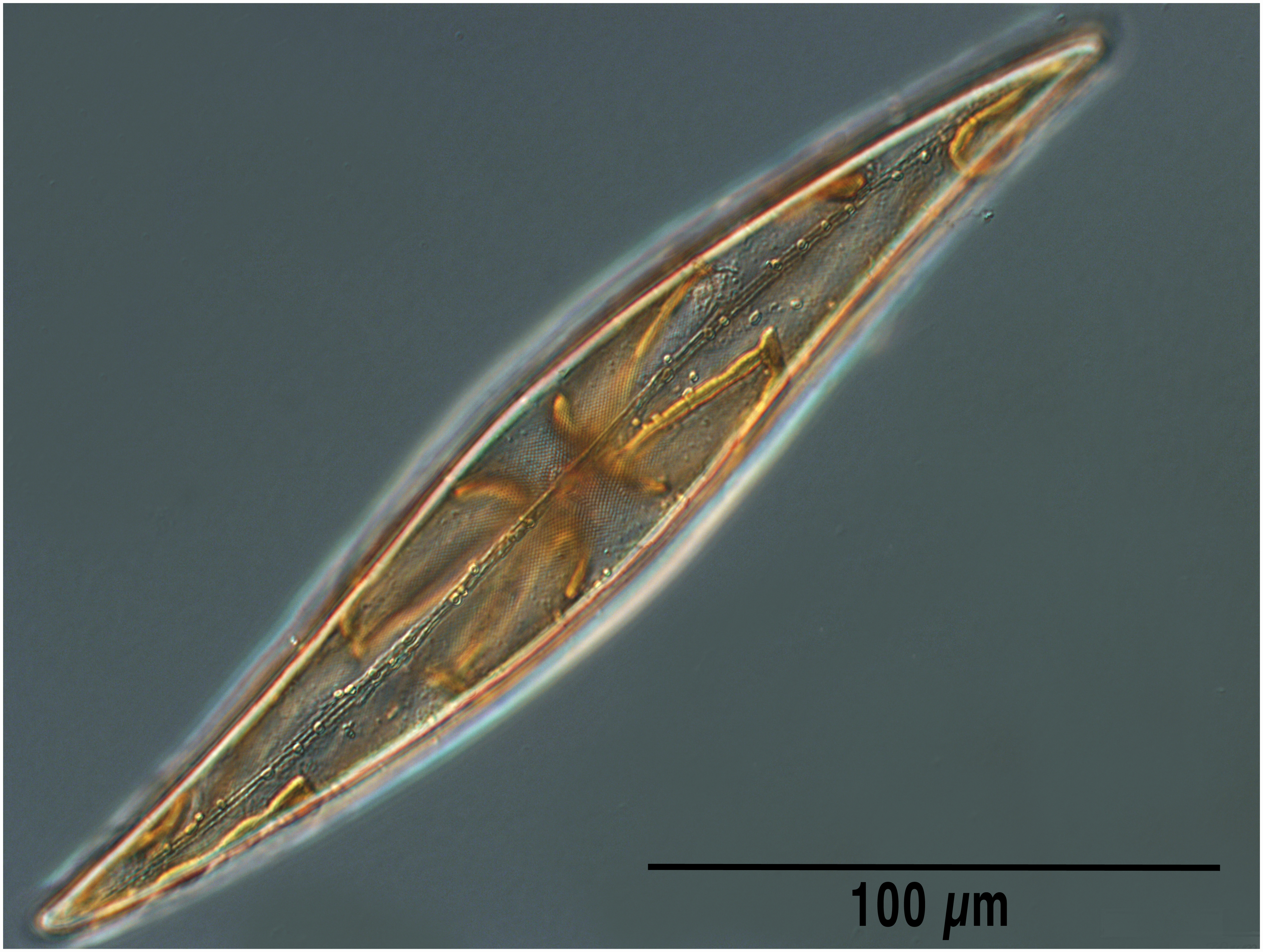 Image of <i>Pleurosigma strigosum</i>