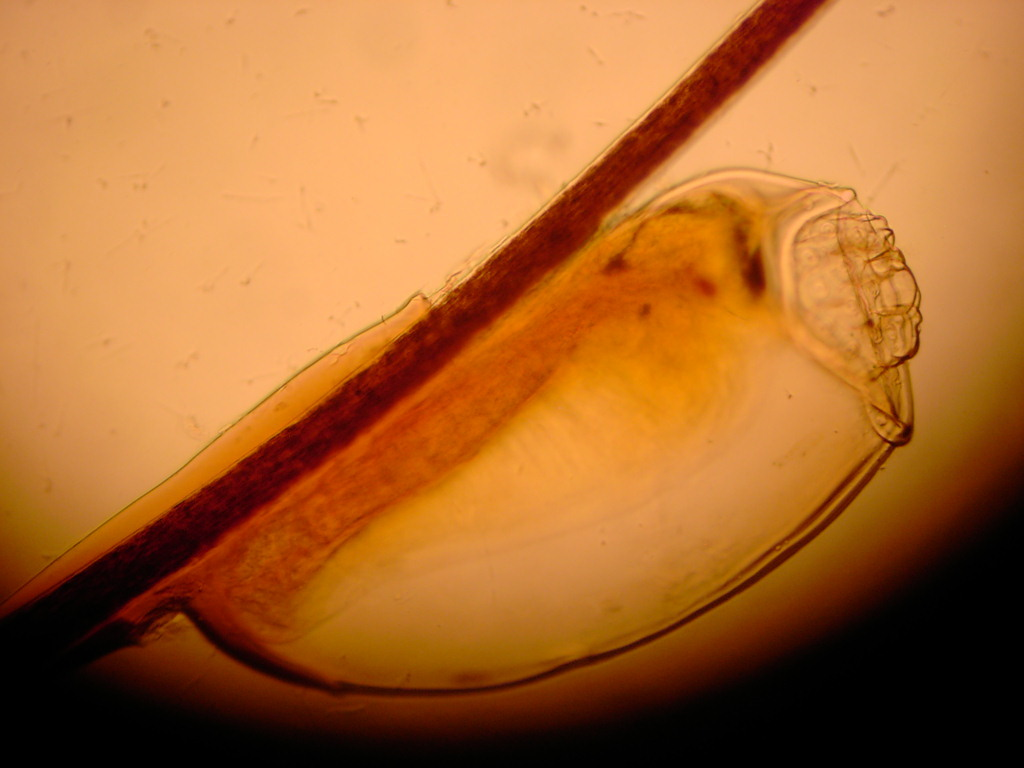 Image of human body louse