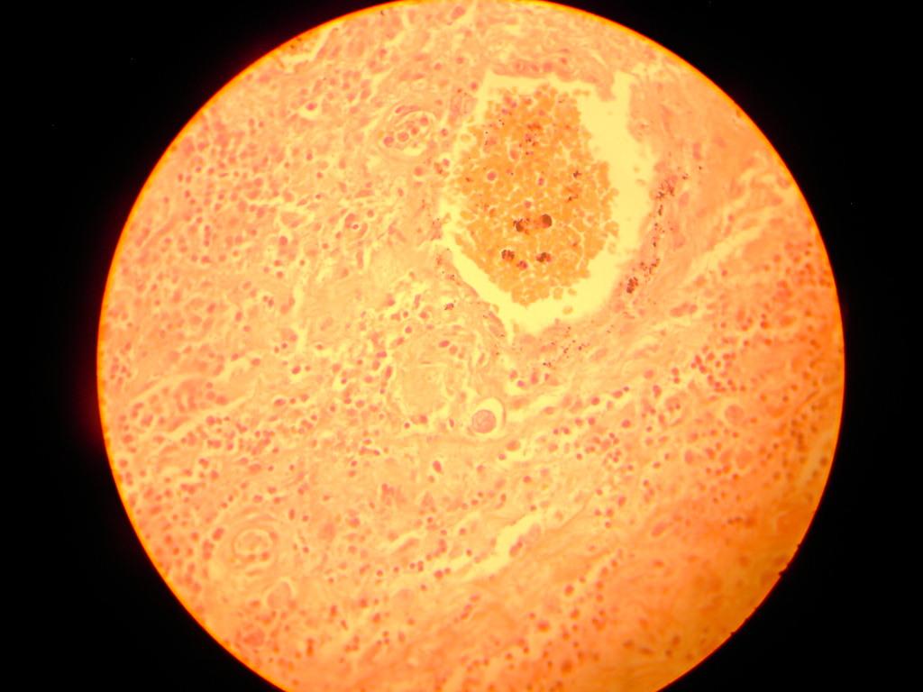 Image of <i>Amoeba histolytica</i>