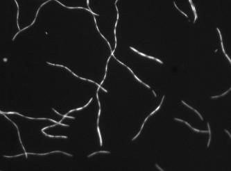 Image of <i>Methanospirillum hungatei</i>