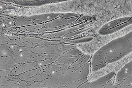 Image of <i>Reticulomyxa filosa</i> Nauss 1949