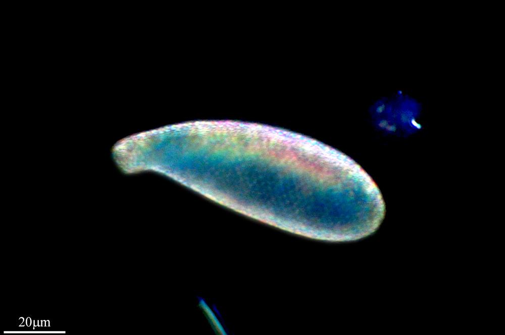 Image of <i>Cyphoderia ampulla</i>