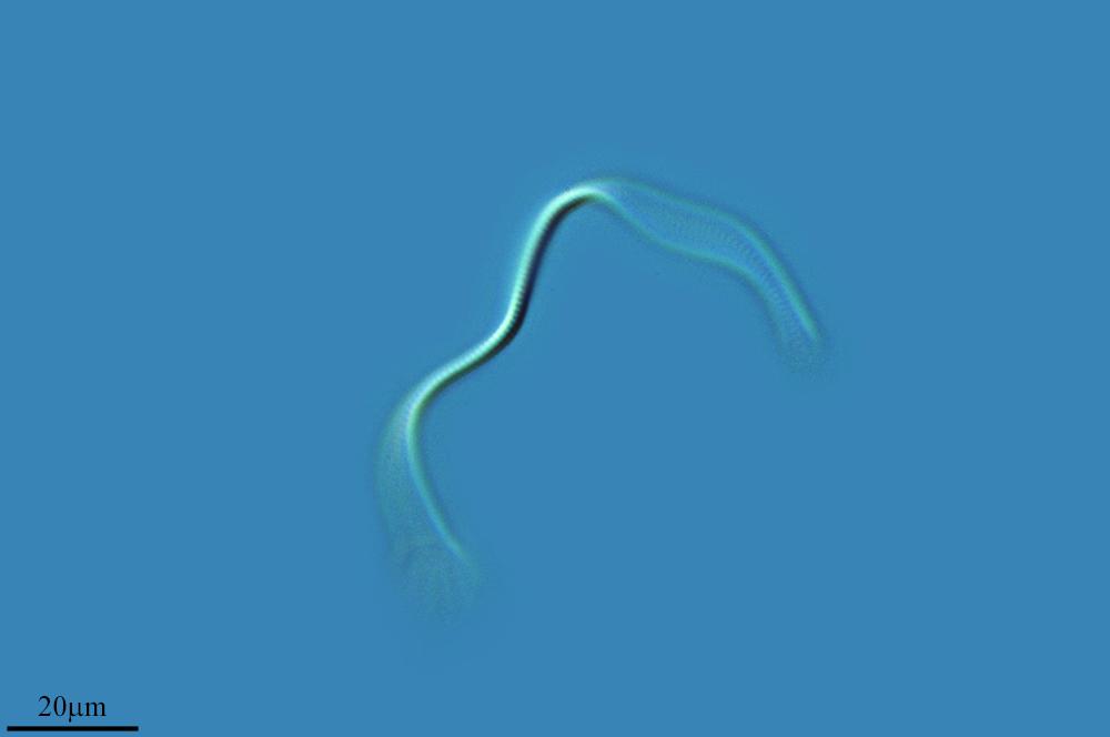 Image of <i>Spirulina subsalsa</i>
