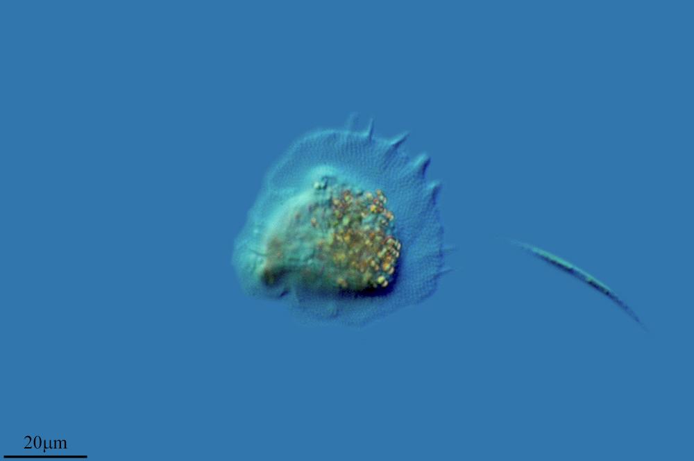 Image of <i>Cochliopodium vestitum</i>