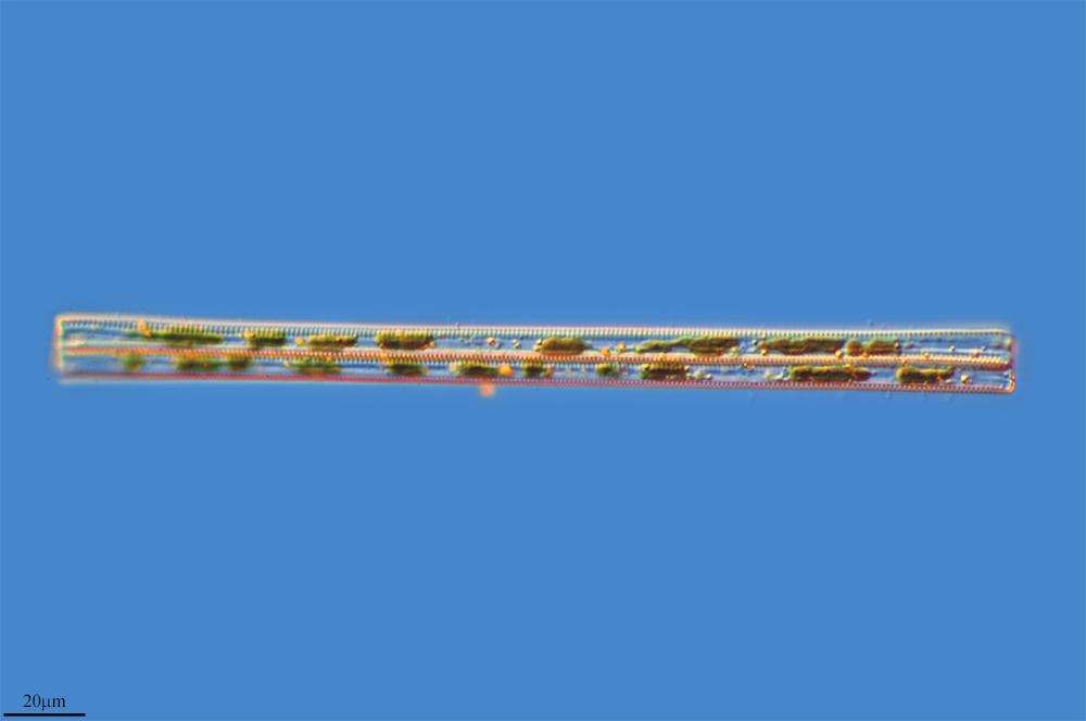 Image of <i>Synedra ulna</i>