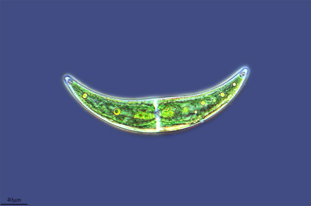 Image of <i>Closterium moniliferum</i>