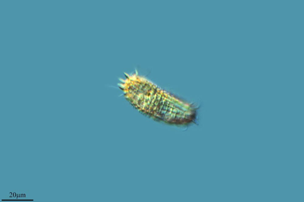 Image of <i>Coleps incurvus</i>