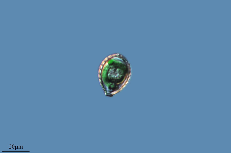 Image of <i>Paulinella chromatophora</i>