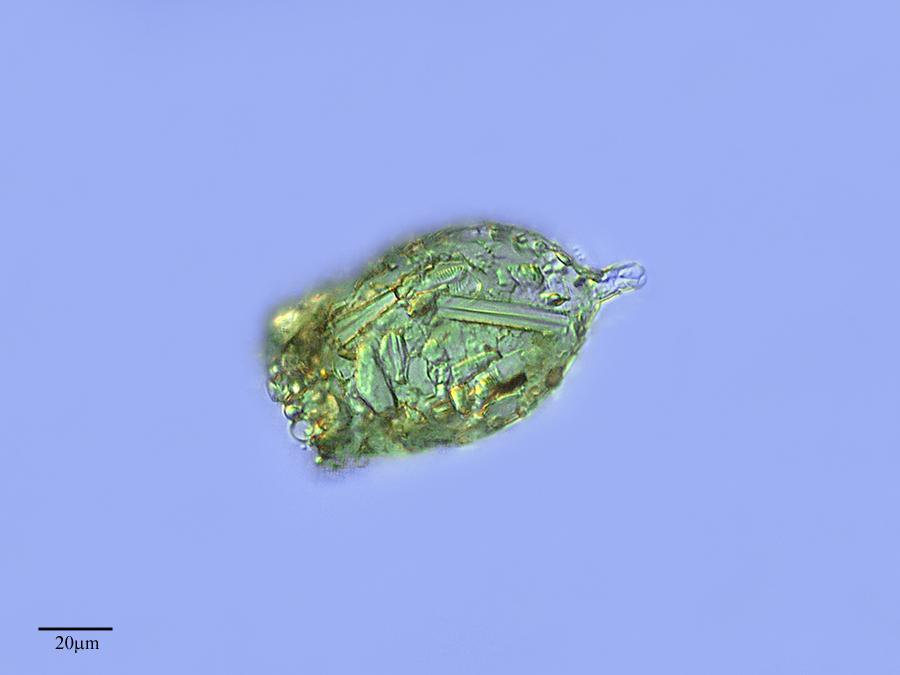 Image of <i>Difflugia acuminata</i>