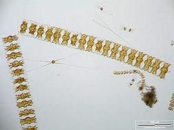 Image of <i>Odontella aurita</i>