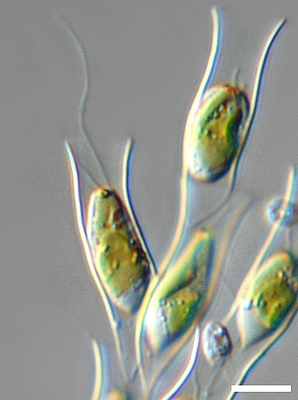 Image of <i>Dinobryon divergens</i>