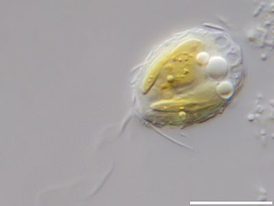 Image of <i>Mallomonas annulata</i>