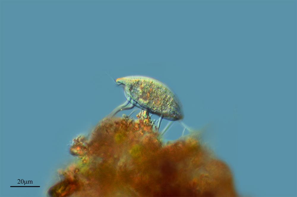 Image of <i>Euplotes patella</i>