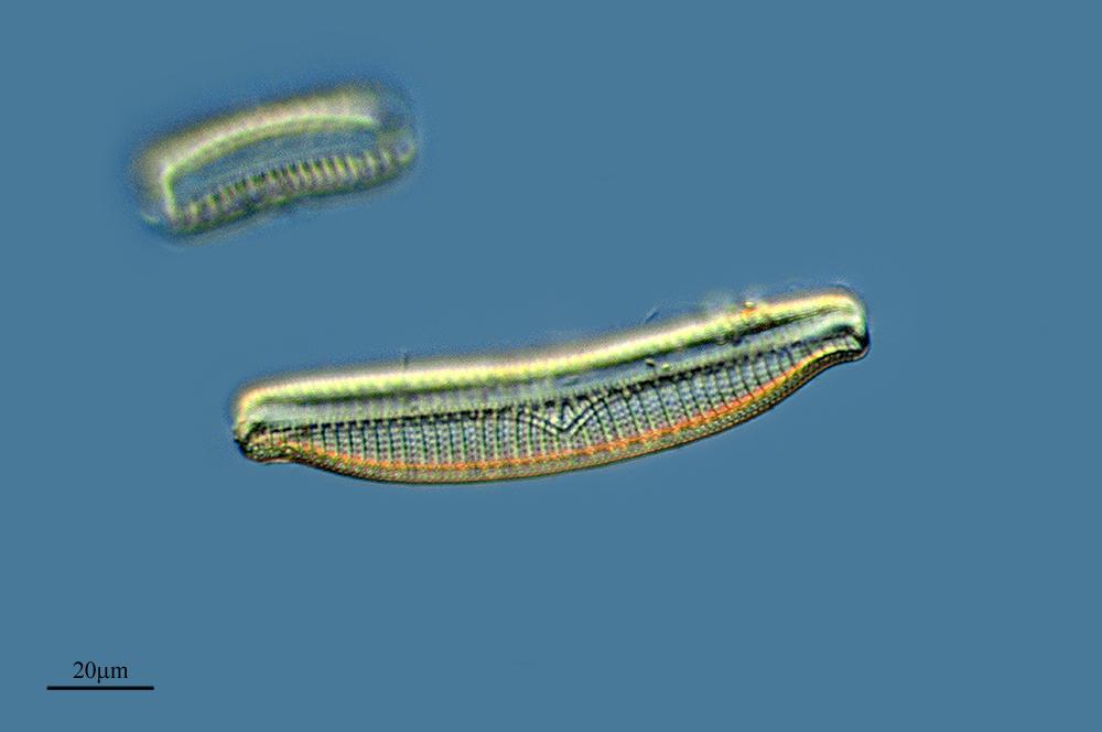 Image of <i>Epithemia turgida</i>