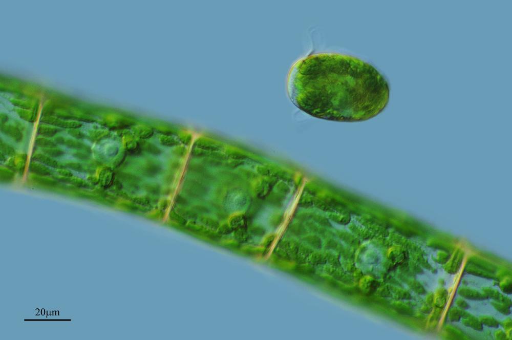 Image of <i>Oedogonium undulatum</i>