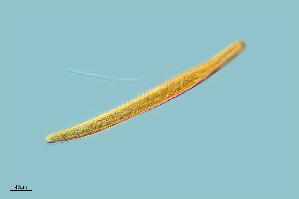 Image of <i>Spirostomum minus</i>