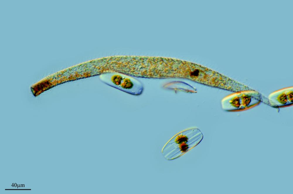 Image of <i>Trachelocerca arenicola</i> Kahl 1933