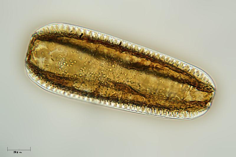 Image of <i>Surirella robusta</i> Ehrenberg