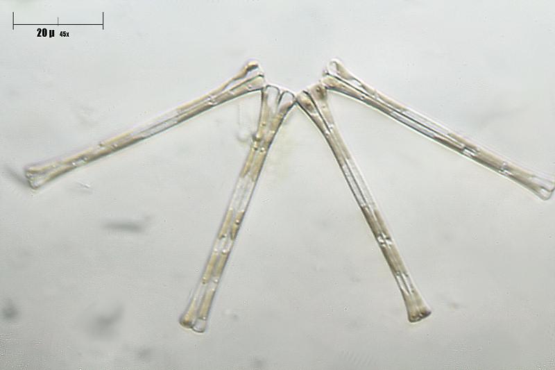 Image of <i>Asterionella formosa</i>
