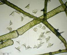 Image of <i>Vorticella campanula</i>