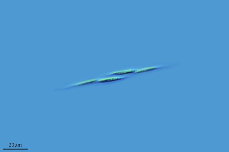 Image of <i>Elakatothrix xx</i>