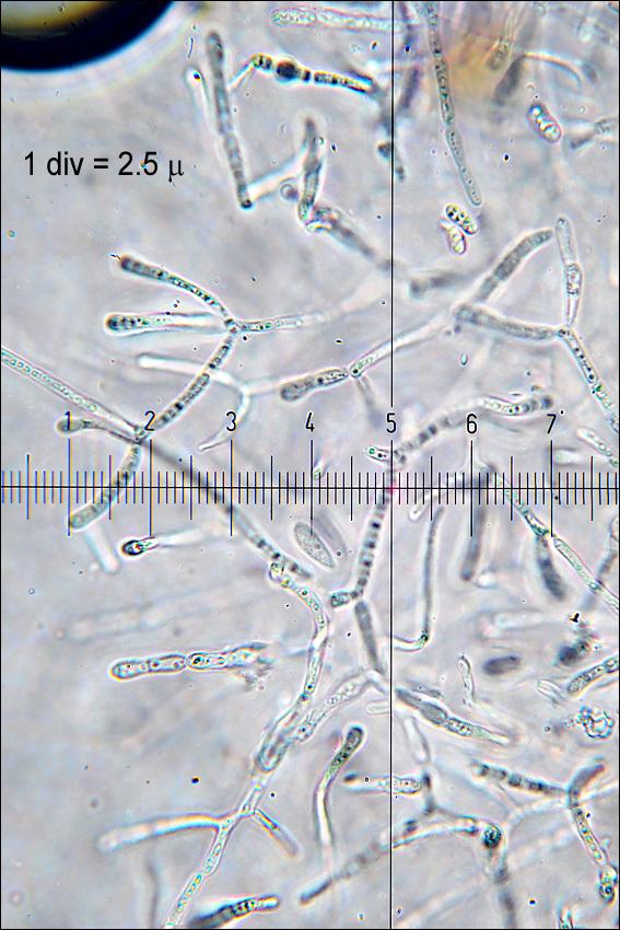 Image of <i>Dacrymyces stillatus</i> Nees 1816