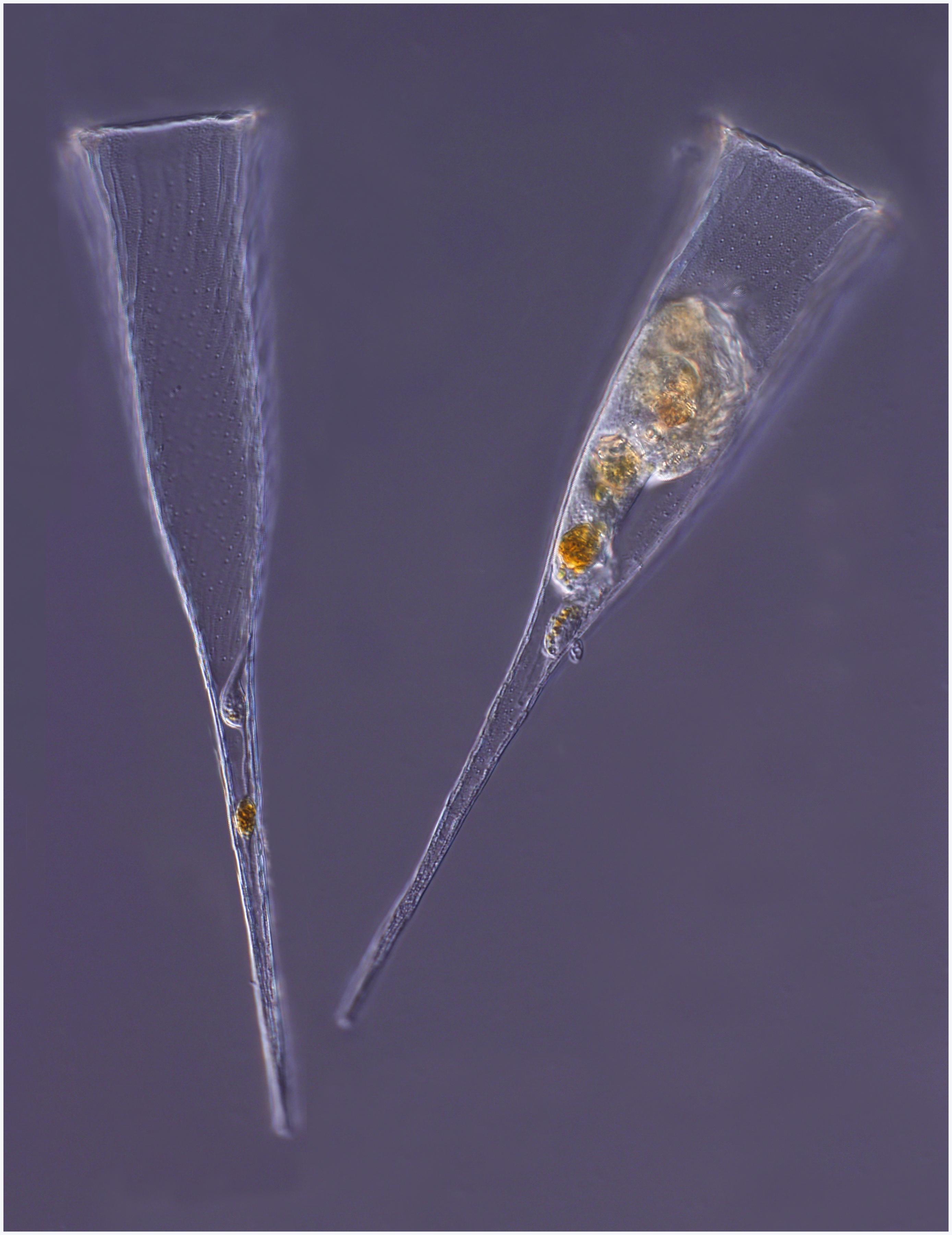 Image of <i>Rhabdonella spiralis</i>