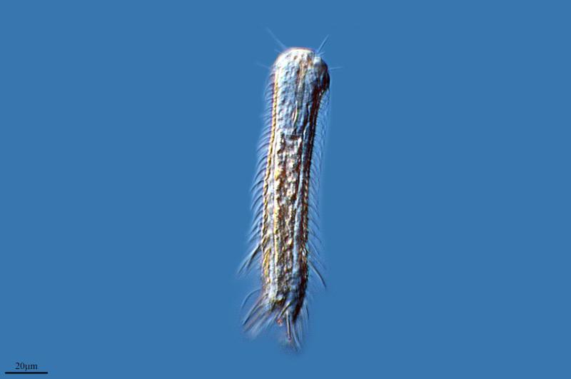 Image of <i>Chaetonotus xx</i>