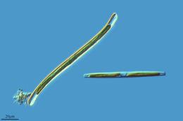 Image of <i>Nitzschia vermicularis</i>
