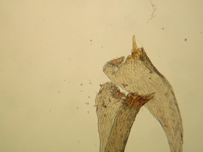 Image of <i>Iwatsukiella leucotricha</i> W. R. Buck & H. Crum 1978
