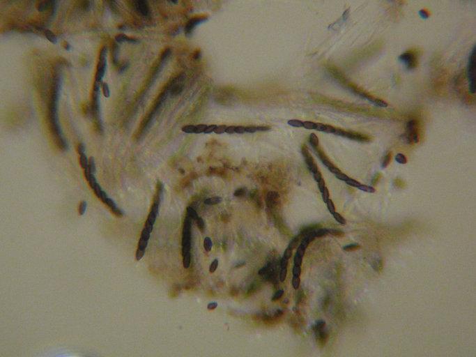 Image of mycocalicium lichen