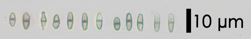 Image of <i>Chaenothecopsis nigra</i> Tibell