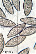 Image of <i>Spinellus fusiger</i> (Link) Tiegh. 1875
