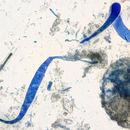 Image of <i>Mycocentrospora acerina</i> (R. Hartig) Deighton 1972