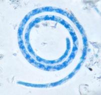 Image of Helicosporium