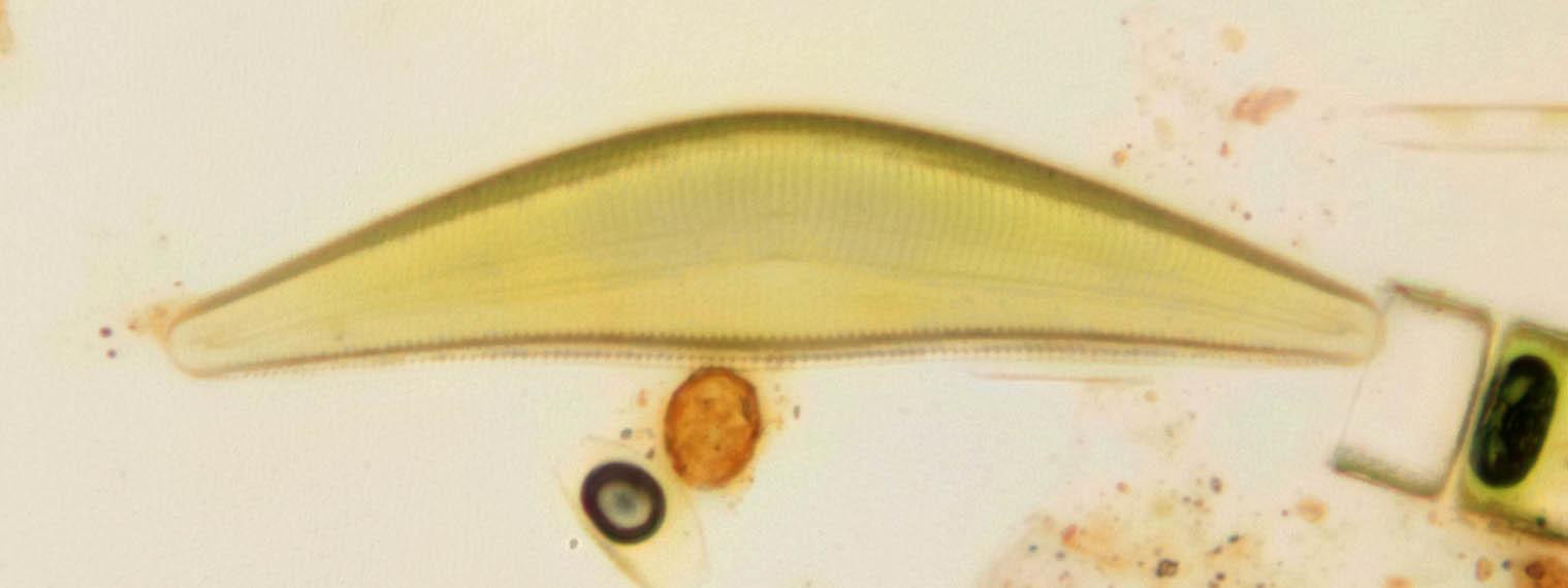 Image of Cymbella