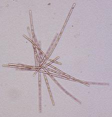 Image of <i>Dendrospora erecta</i> Ingold 1943