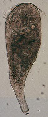 Image of Trumpet animalcules