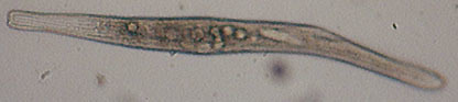 Image of Spirostomum