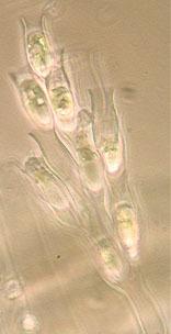 Image of Dinobryon