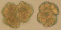 Image of <i>Botryococcus braunii</i>