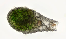 Image of <i>Difflugia gigantea</i>