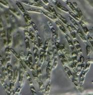 Image of <i>Batrachospermum gelatinosum</i>