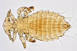 Image of Sucking louse